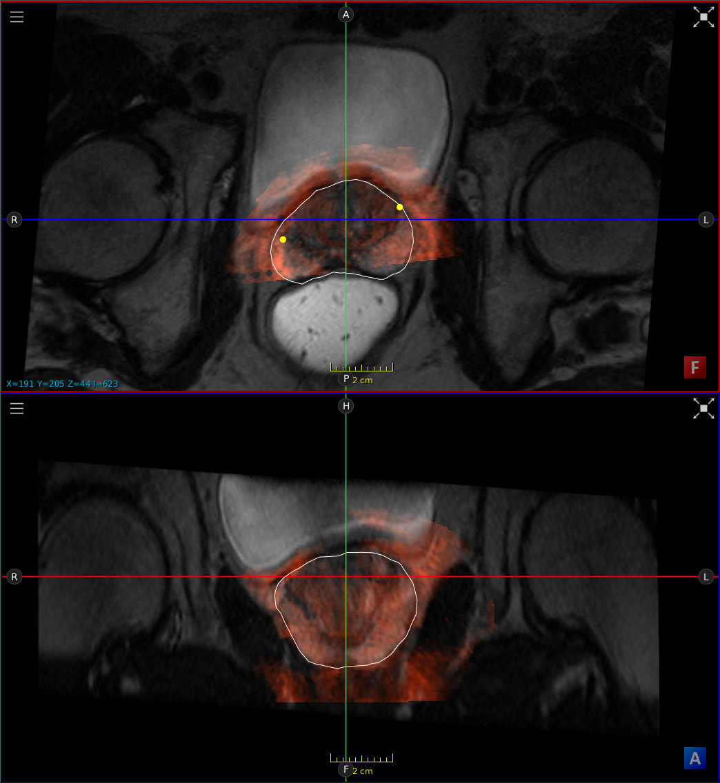 ImFusion - Prostate Fusion